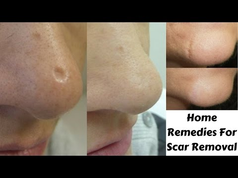 Top 3 Home Remedies to get rid Of Scars Naturally At Home | Scar Removal Easy & Effective Remedies
