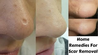 Top Home Reme Get Rid Scars Naturally Home