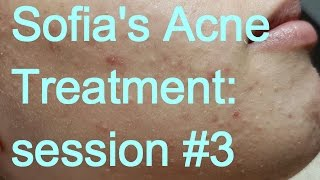 Sofia's Acne Treatment: Session #3 - Part II