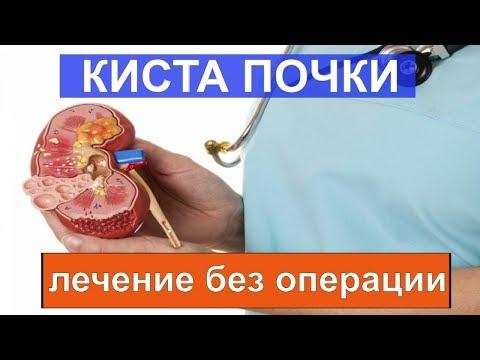 Кисты почек КАК  избавиться без операции