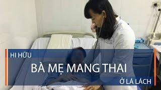 Hi hữu: Bà mẹ mang thai ở lá lách | VTC1