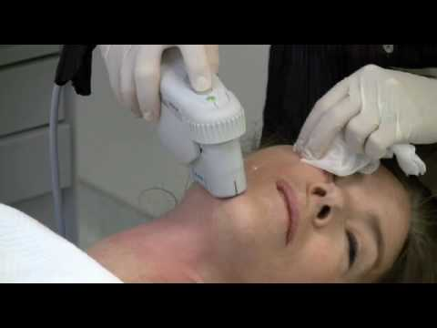 Ultherapy by Dr. Diane Duncan