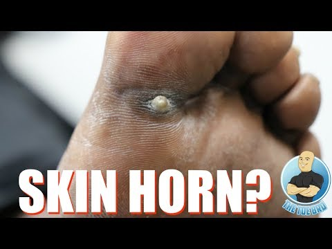IS THIS A SKIN HORN?! ***PLS DON'T GOOGLE SKIN HORN***