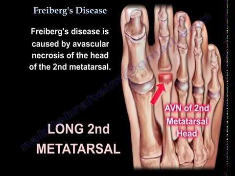 Freiberg's Disease - Everything You Need To Know - Dr. Nabil Ebraheim