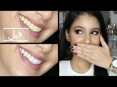 تجربتي مع وصفات طبيعية لتبيض الأسنان | Rawaa Beauty thumbnail