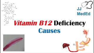 Causes of Vitamin B12 Deficiency | In-Depth Overview including Medications, Diseases & Fish Tapeworm