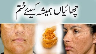 How To Treat Pigmentation Permanently - Say Goodbye To Dark Spots And Hyperpigmentation