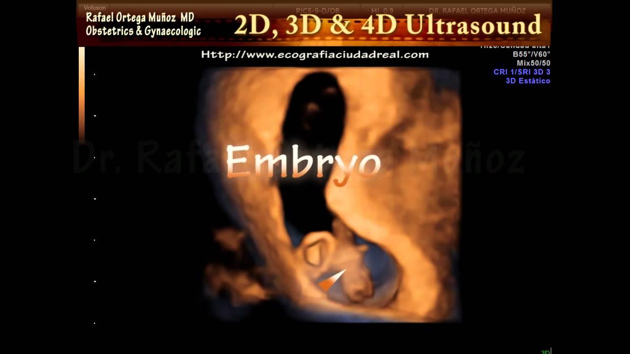 4d Ultrasound 7 Weeks
