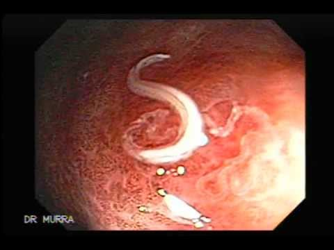 Colonoscopy Moving Parasites Youtube