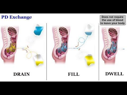 Peritoneal Dialysis Youtube
