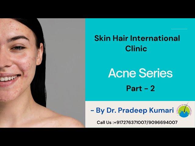 Habits that make acne worse?