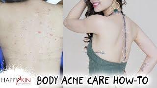 Cách Trị Mụn Lưng & Mụn Cơ Thể Triệt Để Tại Nhà | Happy Skin