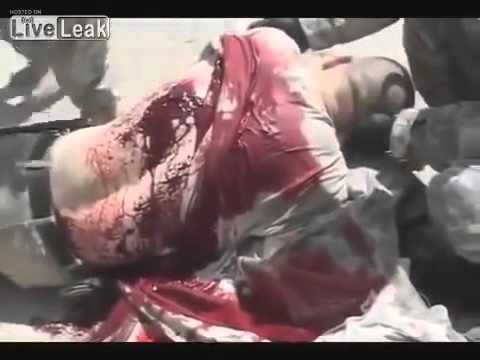 US.SOLDIER COMBAT FOOTAGE,  WOUNDED BY TALIBAN SNIPER**GRAPHIC CONTENT 18+**
