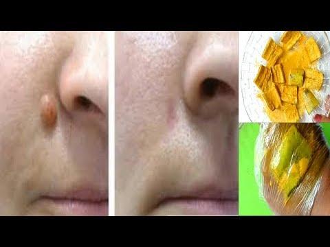 how to remove moles with iodine