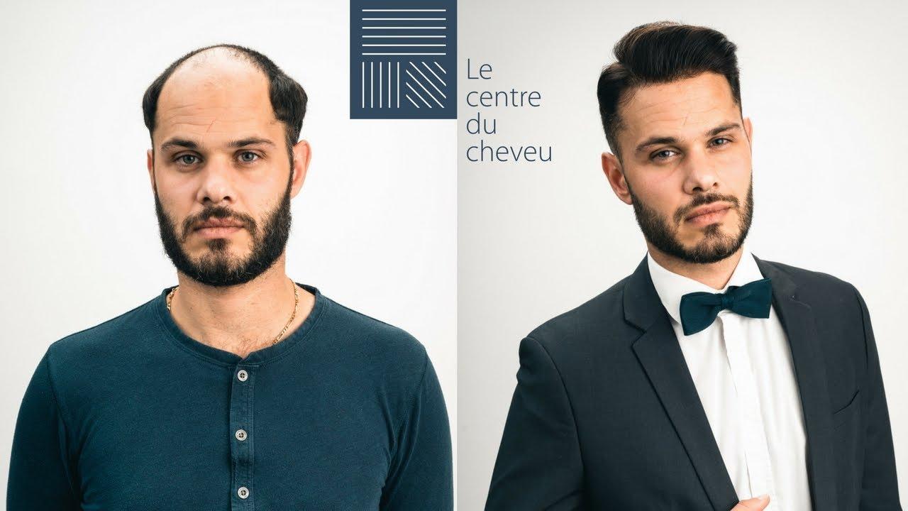 Le Centre Du Cheveu Interview 2018 Youtube