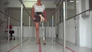 Protese com Novo Cartucho p/ Desarticulação de Quadril - Ortopedia Conforpés
