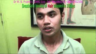 HAIR FALL treatment by acupuncture at SARCGOA Hospital MAYURESH DESAI HAIR FALL SPECIAL (English)