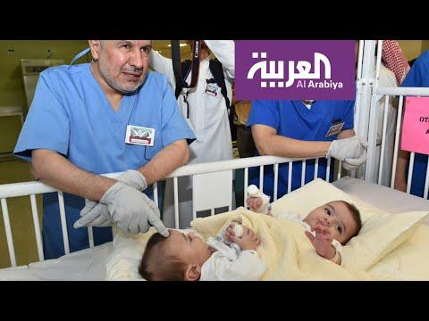فرحة عارمة في مواقع التواصل بنجاح عملية فصل التوأم السيامي الليبي  - نشر قبل 3 ساعة