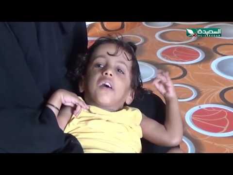 سنابل الخير - الطفل يسري وثقب القلب والطفلة المصابة بالشلل الدماغي  30-3-2020م