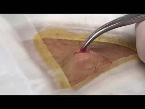 Josie's Knee Cyst - Part Two (Cyst Popping)