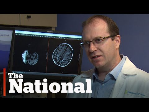 What are some of the health risks following a stroke?