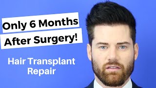 Only 6 Months After his Transplant Repair - Average Hair Transplant Versus A Good Hair Transplant!