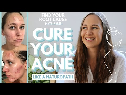 find-the-root-cause-of-your-acne-(only-way-to-cure-acne-for-good!)