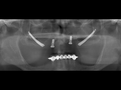 Zigomatik ve Dental İmplant Ameliyatı (Zygomatic and Dental Implant Surgery) - Doç. Dr. Belir Atalay