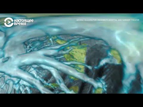 Как выглядят легкие человека, который заболел коронавирусом: 3D-анимация