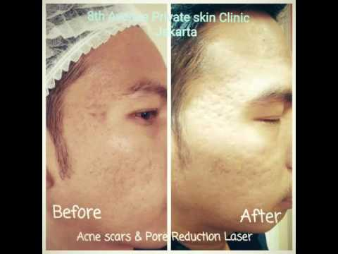 Treatment at 8th Avenue Private Skin Clinic Jakarta