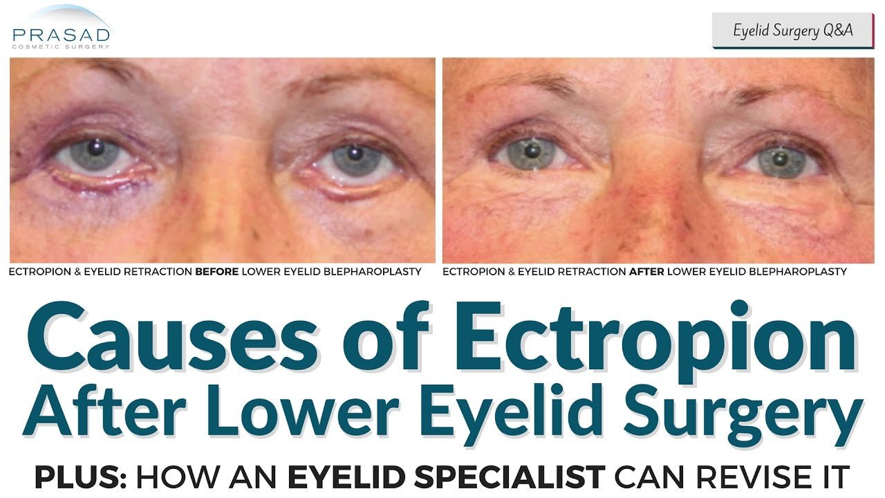 Causes of Ectropion after Lower Eyelid Surgery, and ...
