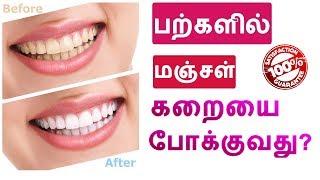 பற்களில் படிந்திருக்கும் மஞ்சள் கறையை  போக்குவது ? How To Whiten Your Yellow Teeth in tamil ?