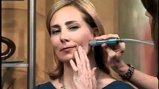 The new microdermabrasion