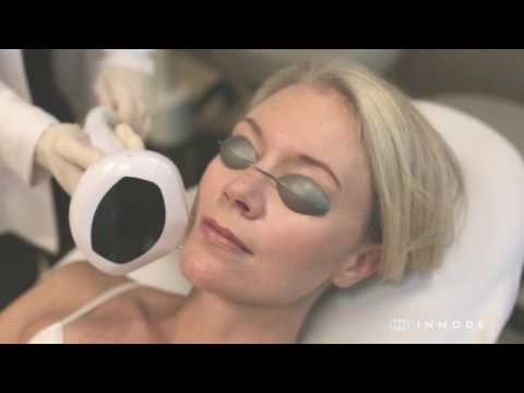 Lumecca IPL - Clear Skin in 10 Days