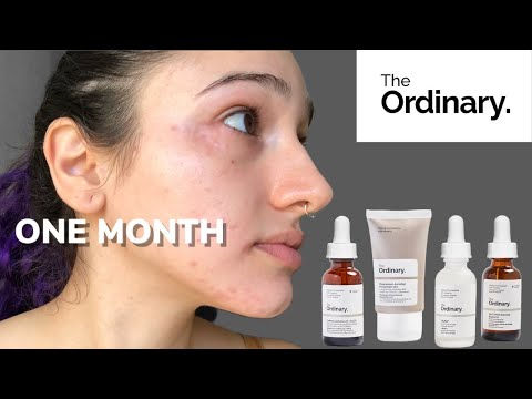 I Used Only The Ordinary Skincare for 30 Days - Vmas D21
