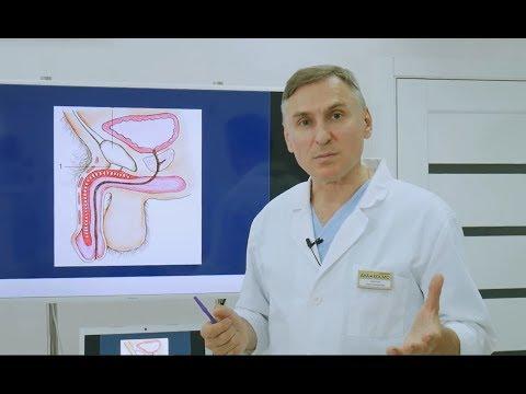 Фаллопластика: как увеличить и утолщить член