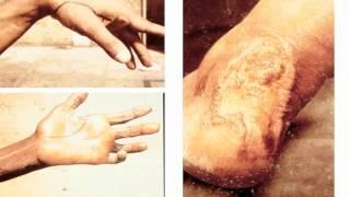 Leprosy in 2013 -- Fred Heinzel, MD