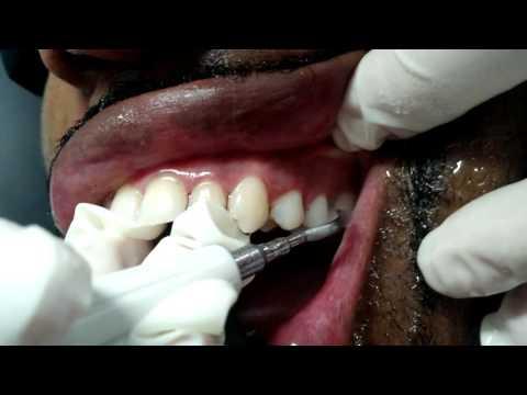 Video Tártaro, por Dr Everaldo Guimarães