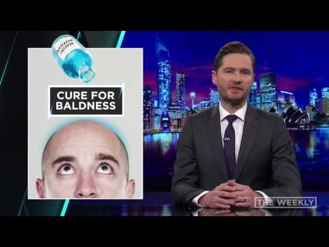 The Weekly: A Cure for Baldness
