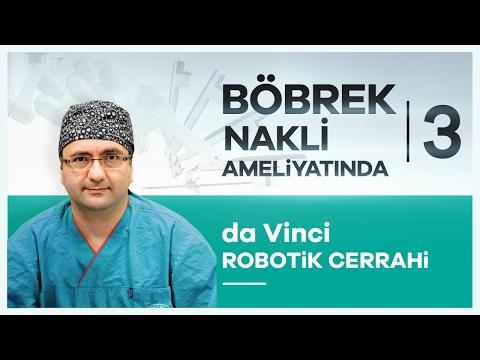 ''da Vinci Robotik Cerrahi'' Sistemi Ile Böbrek Nakli Tedavisi - Prof. Dr. Volkan Tuğcu