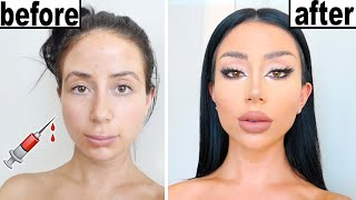 DIY PLASTIC SURGERY!