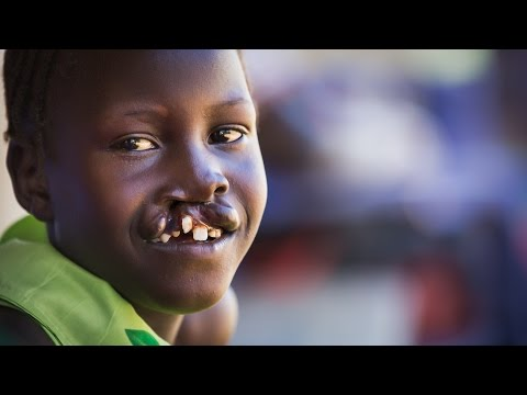 """They Call Me """"Deformed"""" - Repairing Cleft Lips in South Sudan"""