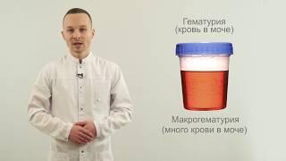 Гематурия (кровь в моче)