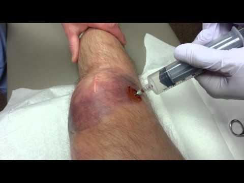 Broken patella, blood draining