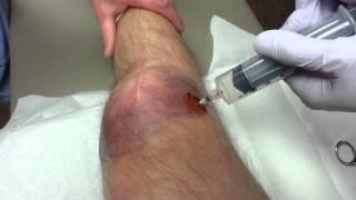 Broken patellar, blood draining