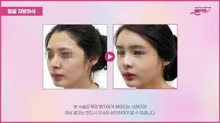 [얼굴지방이식] 특별함이 느껴지는 쁘아뜨 솔루션의 효과…