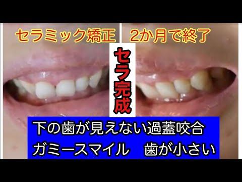 笑うと歯茎が丸見えで笑うときは手は必ず口元にしていました