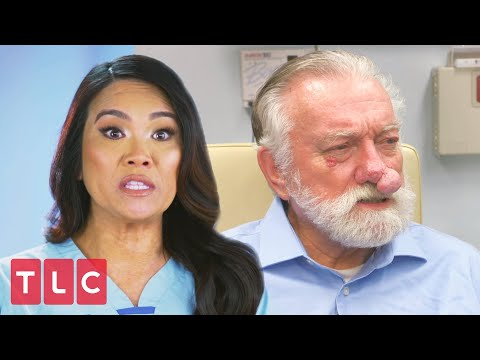 The Man With Two Noses Dr Pimple Popper Youtube