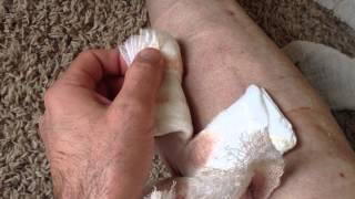 My Varicose Vein Microphlebectomy Surgery before & after