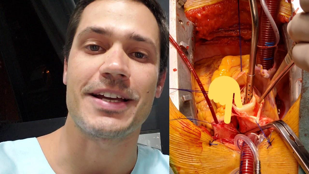 Técnicas básicas da cirurgia cardíaca